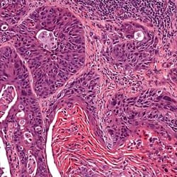 anatomia-patologia-thumb-0011
