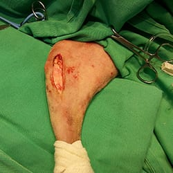cirurgia-thumb-003.jpg